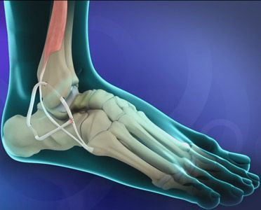 Ankle Ligament Reconstruction